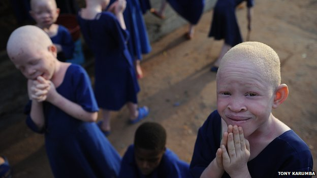 Albino children take a break in a recreational hall at the Mitindo Primary School for the blind, which has become a rare sanctuary for albino children. 25 January 2009