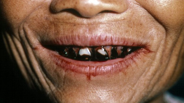 Betel chewer's teeth and lips
