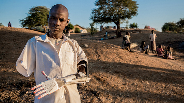 3D printed prosthetic arm - Project Daniel, finalist in Designs of the Year 2015