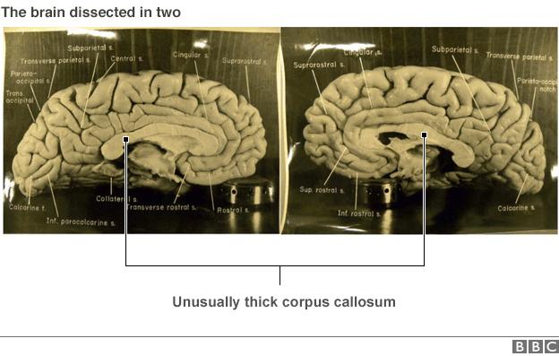 pictures of Einstein's brain