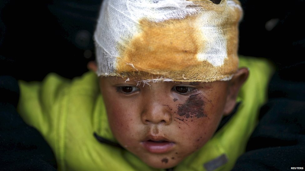 Abhishek Tamang, 4, looks on after receiving medical treatment, following Saturday's earthquake, at Dhading hospital, in Dhading Besi (27 April 2015)