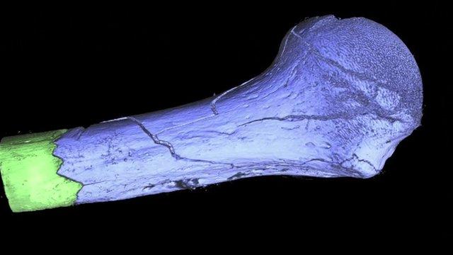 3D scan of a bone