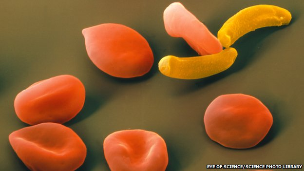 The parasite Plasmodium falciparum (in yellow) among red blood cells
