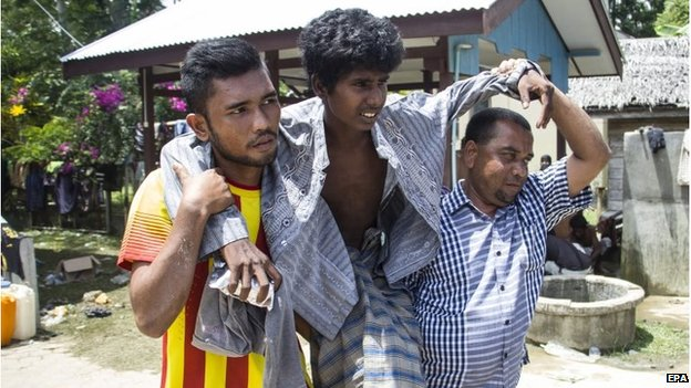 A Rohingya migrant is helped to hospital in Aceh province, Indonesia (10 May 2015)