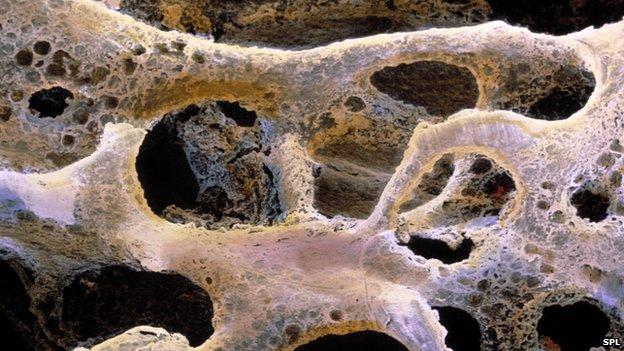 Close up of bone