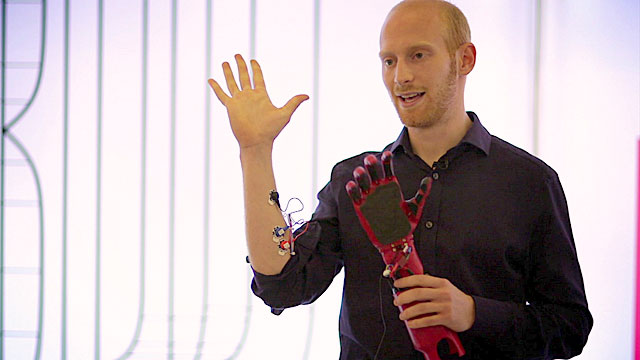 A prosthetic arm linked to muscle movements