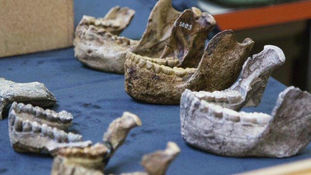 Human jaws