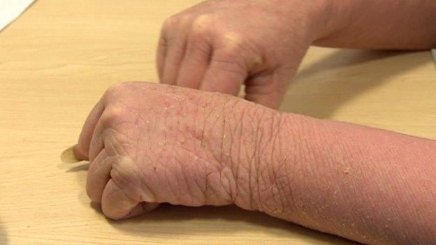 A skin patient